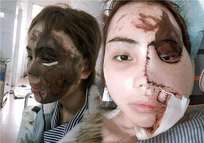 Cô gái bị chồng sắp cưới tạt axit biến dạng gương mặt ở Đà Nẵng trở lại với diện mạo bất ngờ, còn tiết lộ trên Tiktok điều khó tin-1