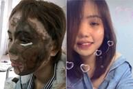 Cô gái bị chồng sắp cưới tạt axit biến dạng gương mặt ở Đà Nẵng trở lại với diện mạo bất ngờ, còn tiết lộ trên Tiktok điều khó tin