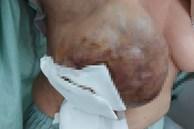 Mang khối u ban đầu chỉ như quả trứng chim cút và có thể lành tính, nhưng 20 năm 'tự điều trị' đã dẫn đến ung thư vú ác tính