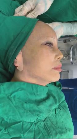 Tỉnh dậy sau ca dao kéo lần thứ N, cô dâu 63 tuổi tiết lộ sợ chết trên bàn mổ-1