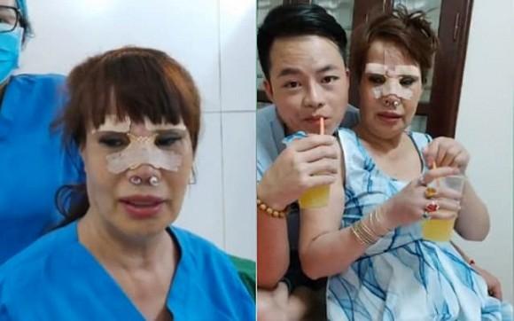 Tỉnh dậy sau ca dao kéo lần thứ N, cô dâu 63 tuổi tiết lộ sợ chết trên bàn mổ-4