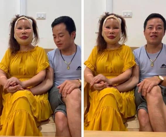 Diện mạo mới của cô dâu 62 tuổi ở Cao Bằng sau 3 ngày khiến dân mạng khiếp vía vì hậu phẫu căng da mặt-1