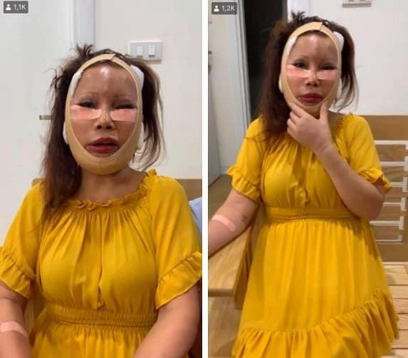 Diện mạo mới của cô dâu 62 tuổi ở Cao Bằng sau 3 ngày khiến dân mạng khiếp vía vì hậu phẫu căng da mặt-2
