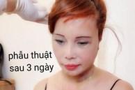 Diện mạo mới của cô dâu 62 tuổi ở Cao Bằng sau 3 ngày khiến dân mạng khiếp vía vì hậu phẫu căng da mặt
