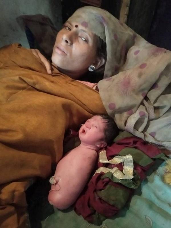 Xuất hiện em bé sinh ra không có cả tay lẫn chân, giống hệt hội chứng mà Nick Vujicic mắc phải-1