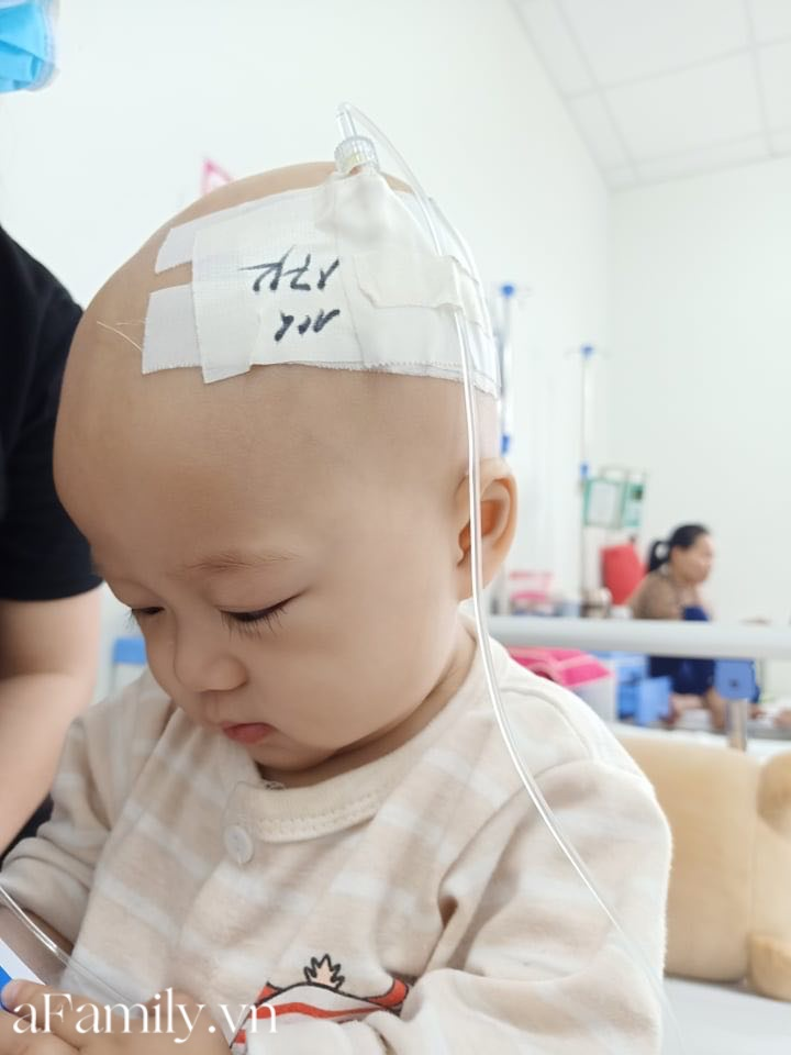 Xót xa bé trai 14 tháng tuổi liền lúc mắc 2 bệnh ung thư, nhìn con cười mà bố mẹ không cầm được nước mắt-3