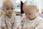 Em bé 14 tháng tuổi mang trong mình 2 loại ung thư: Chừng nào còn được nhìn thấy nụ cười của con, chúng tôi còn cố gắng-7
