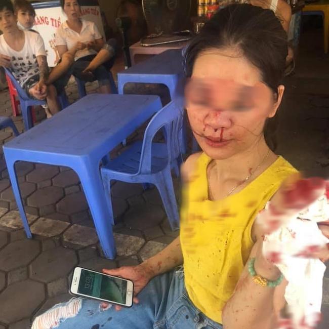 Đi tìm sự thật thông tin nữ khách hàng bị thẩm mỹ viện Venus gọi giang hồ đánh chảy máu mặt vì đòi bảo hành-1