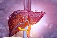 Trước khi gan bị tổn thương, cơ thể sẽ phát ra 3 tín hiệu quan trọng bạn nên biết