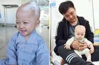 Em bé 14 tháng tuổi mang trong mình 2 loại ung thư: 'Chừng nào còn được nhìn thấy nụ cười của con, chúng tôi còn cố gắng'