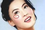4 nốt ruồi 'cay đắng' trên mặt phụ nữ, hôn nhân thường trục trặc, dễ cô đơn cả đời