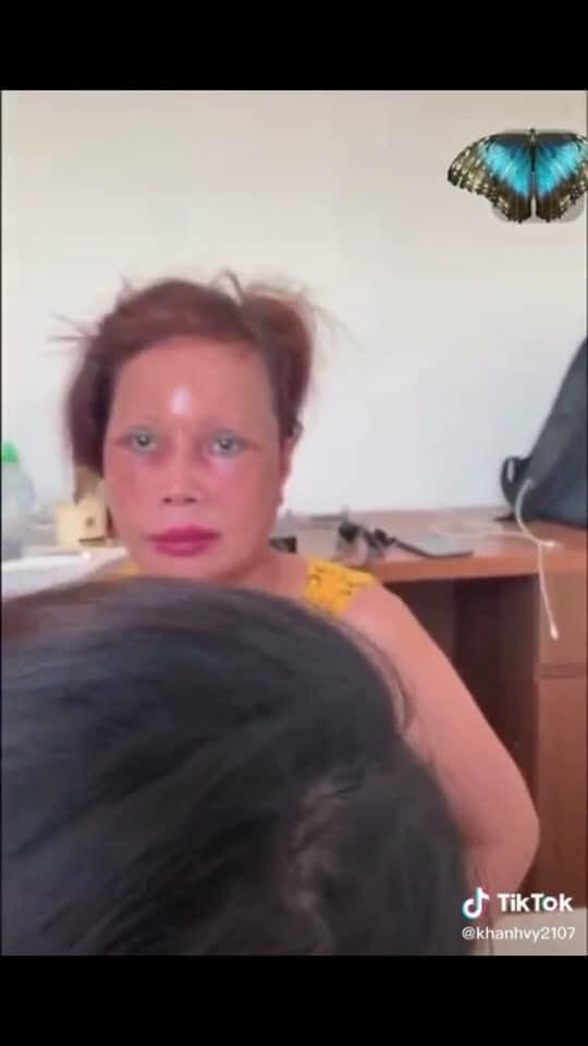 Cô dâu 63 tuổi ở Cao Bằng lại tiếp tục lộ diện khuôn mặt biến dạng, sưng phù không thể nhận ra-3