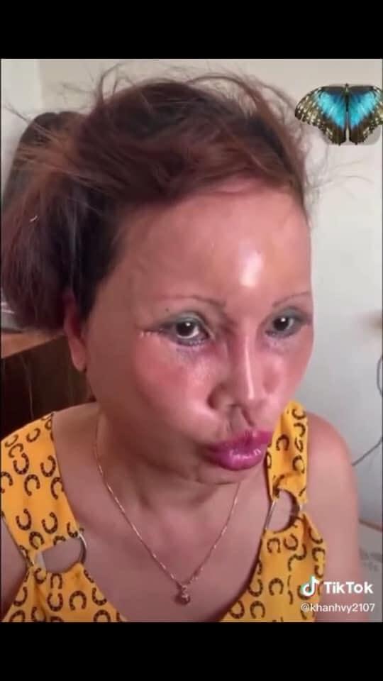 Cô dâu 63 tuổi ở Cao Bằng lại tiếp tục lộ diện khuôn mặt biến dạng, sưng phù không thể nhận ra-4