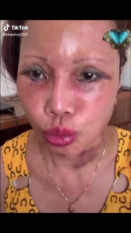Cô dâu 63 tuổi ở Cao Bằng lại tiếp tục lộ diện khuôn mặt biến dạng, sưng phù không thể nhận ra-5