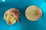 TP.HCM: Đi nâng ngực tại thẩm mỹ viện trôi nổi, người phụ nữ bị vỡ túi ngực nặng nề-5