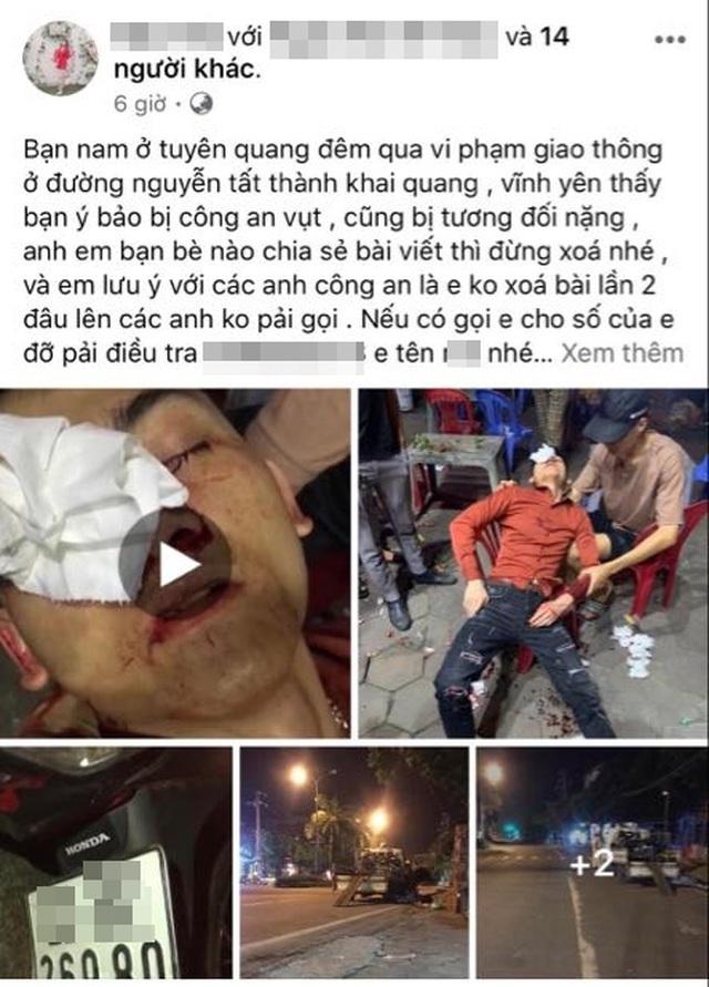 CSGT ở Vĩnh Phúc bị tố dùng dùi cui vụt vỡ mũi người vi phạm giao thông-1