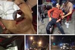 CSGT ở Vĩnh Phúc bị tố dùng dùi cui vụt vỡ mũi người vi phạm giao thông