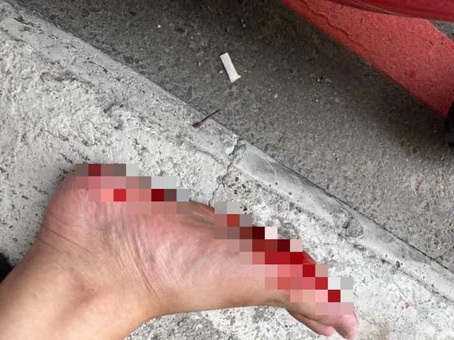 Góc oái oăm: Đang đi đường bỗng dưng đổ máu vì vật thể lạ mọc lên từ vỉa hè-1