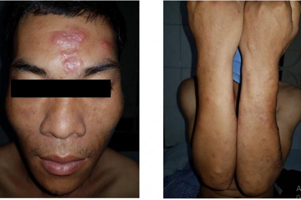Bệnh phong - Triệu chứng bệnh phong và cơ chế lây nhiễm