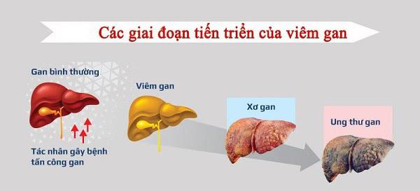 Bước tiến mới trong kiểm soát và điều trị bệnh gan-1