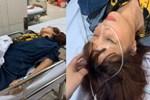 Gương mặt xập xệ sau 2 tuần dao kéo, cô dâu Cao Bằng không nhận ra mình trong ảnh-5
