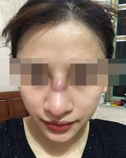 Cô gái 19 tuổi nhiễm trùng mũi sau khi làm đẹp ở spa-1