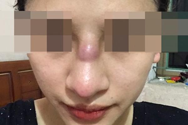 Bị nhiễm trùng sau khi nâng mũi ở spa