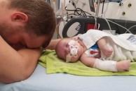 Nhịp tim tăng lên 320 lần/phút, bé sơ sinh được bác sĩ cấp cứu bằng cách nhúng đầu vào xô nước đá