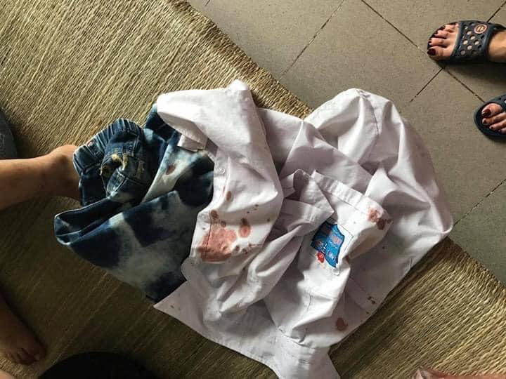 Xôn xao thông tin bé trai tiểu học bị phụ huynh cùng lớp bắt cóc ra ngoài, đánh chảy máu miệng vì trót giật mũ của bạn-2