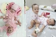 Sẵn sàng cho ca mổ tách dính 2 bé gái 'dùng chung một bỉm' tại BV Nhi Đồng TP.HCM