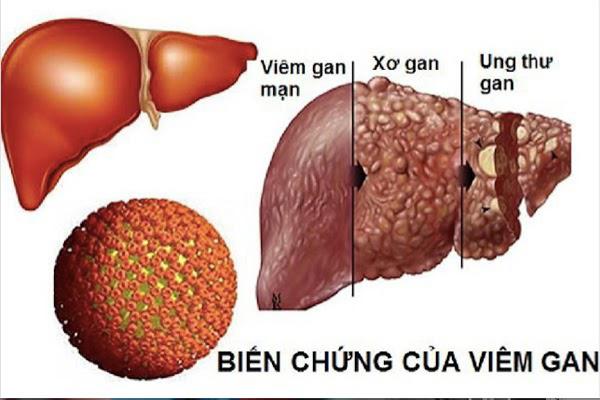 Hy vọng mới trong điều trị viêm gan, xơ gan ở BV Thu Cúc-1
