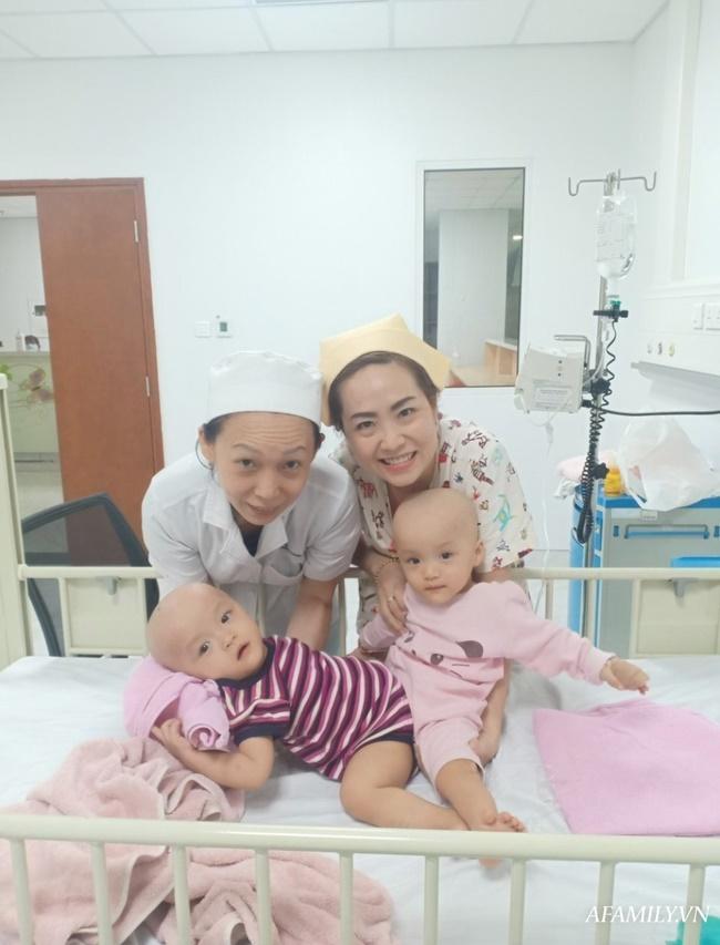 Mẹ 2 bé gái song sinh dính nhau nghẹn ngào mong con bình an trước khi bước vào ca mổ sinh tử-2