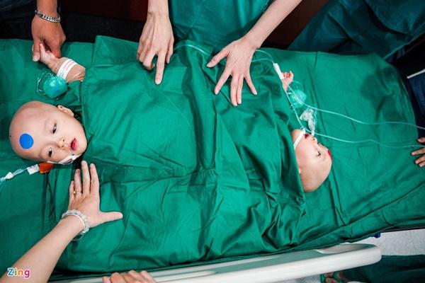 100 y bác sĩ làm gì trong phòng mổ tách song sinh dính liền?-4