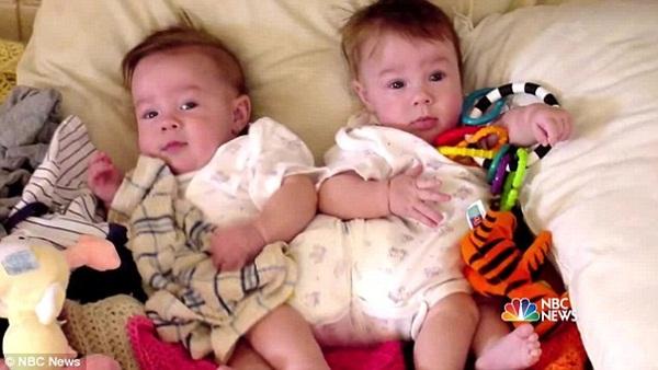 2 con gái sinh đôi dính liền, cha mẹ mất 7 tháng mới quyết định tách rời con, 17 năm sau ai cũng mãn nguyện khi thấy nụ cười của các em-4