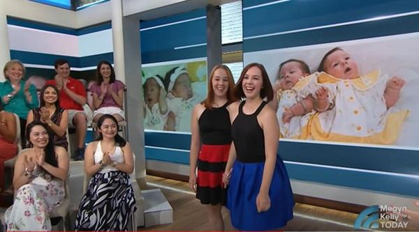 2 con gái sinh đôi dính liền, cha mẹ mất 7 tháng mới quyết định tách rời con, 17 năm sau ai cũng mãn nguyện khi thấy nụ cười của các em-10