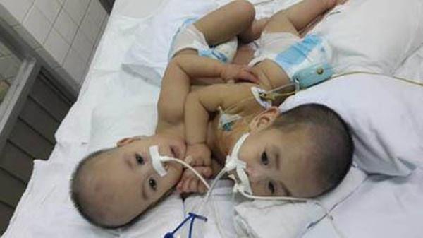 Những ca phẫu thuật tách rời song sinh đình đám của Việt Nam-3