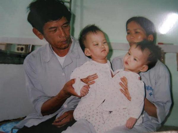 Những ca phẫu thuật tách rời song sinh đình đám của Việt Nam-4