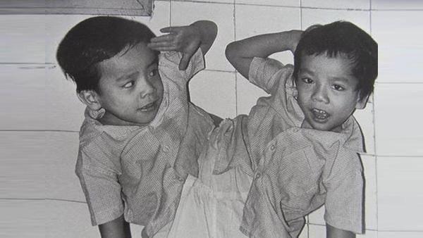 Những ca phẫu thuật tách rời song sinh đình đám của Việt Nam-5