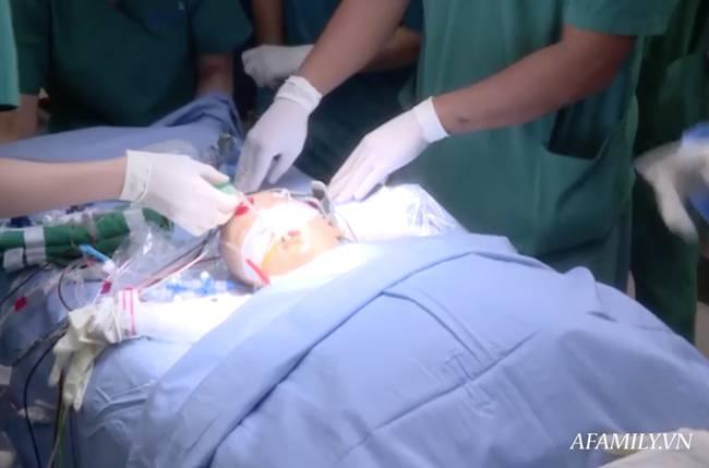 Tin vui: 18h40, cặp song sinh Trúc Nhi - Diệu Nhi đã được đưa ra khỏi phòng mổ sau khi các bác sĩ hoàn tất khâu tạo hình cuối cùng-10