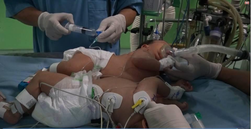 Loạt ảnh trước và sau mổ tách của các cặp song sinh dính liền nhau: Theo dõi kết quả phẫu thuật chắc chắn ai cũng phải thốt lên rằng quá kỳ diệu!-2