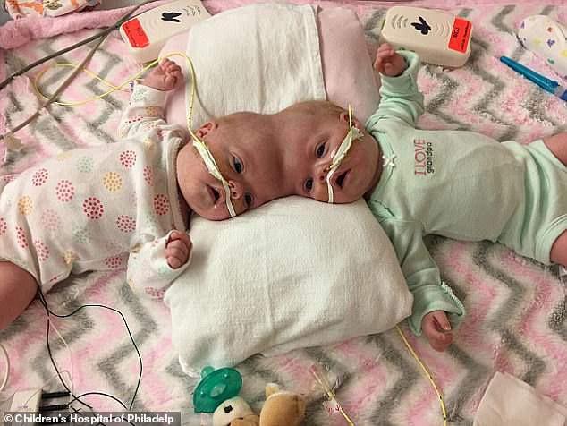 Loạt ảnh trước và sau mổ tách của các cặp song sinh dính liền nhau: Theo dõi kết quả phẫu thuật chắc chắn ai cũng phải thốt lên rằng quá kỳ diệu!-10