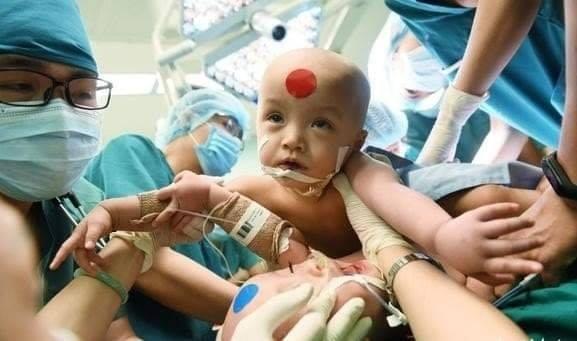 Video cận cảnh quá trình gây mê phẫu thuật tách cặp song sinh dính liền khiến người xem xúc động-1