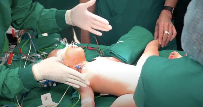 Video cận cảnh quá trình gây mê phẫu thuật tách cặp song sinh dính liền khiến người xem xúc động-2