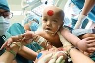 Video cận cảnh quá trình gây mê phẫu thuật tách cặp song sinh dính liền khiến người xem xúc động