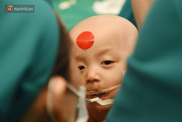 ẢNH: Khoảnh khắc xúc động trong suốt 12 tiếng phẫu thuật giúp Trúc Nhi - Diệu Nhi có được hình hài nguyên vẹn-10