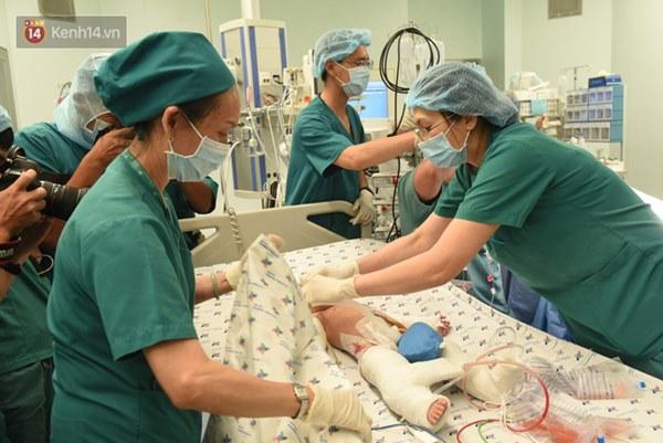 ẢNH: Khoảnh khắc xúc động trong suốt 12 tiếng phẫu thuật giúp Trúc Nhi - Diệu Nhi có được hình hài nguyên vẹn-19