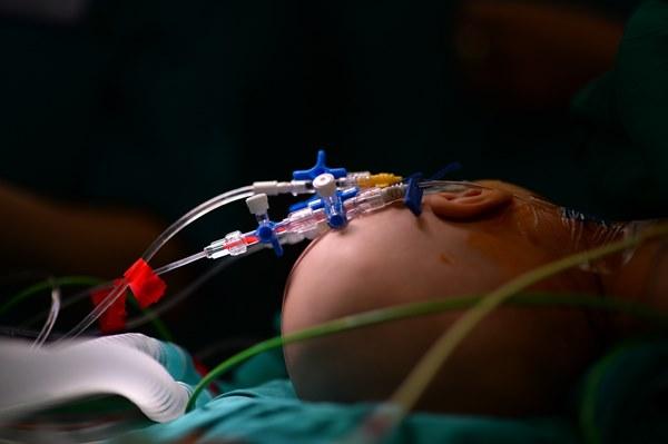 Cuộc đại phẫu đặc biệt của gần 100 bác sĩ tách song sinh dính liền-9