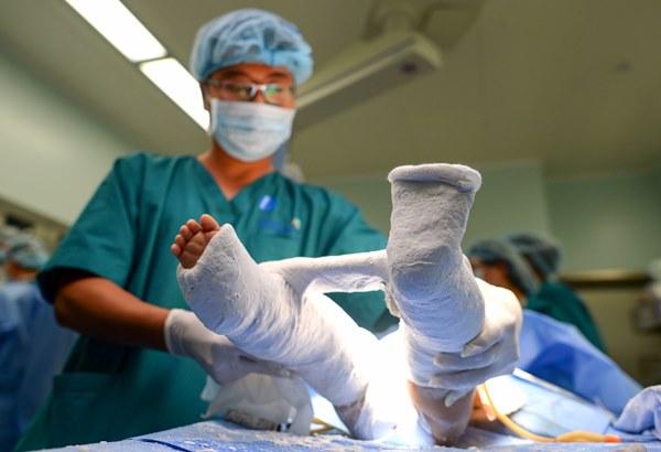 Cuộc đại phẫu đặc biệt của gần 100 bác sĩ tách song sinh dính liền-16