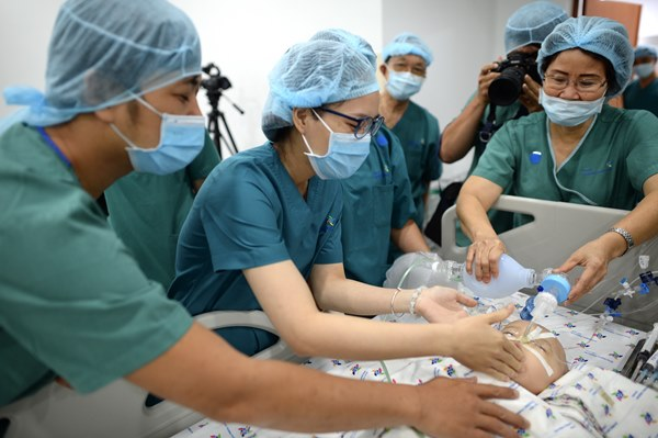 Cuộc đại phẫu đặc biệt của gần 100 bác sĩ tách song sinh dính liền-17