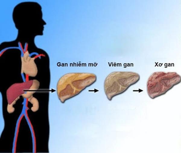Hai căn bệnh cực kỳ phổ biến và rất dễ phát triển thành ung thư, bạn cần ngăn chặn ngay từ bây giờ-2